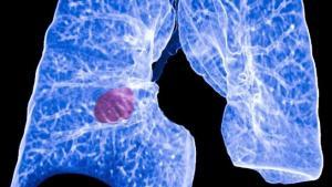 Aprueban fármaco en EEUU que ataca con éxito a los tumores del cáncer de pulmón